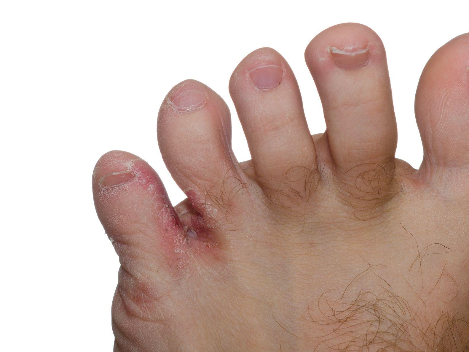 pied d athlete
